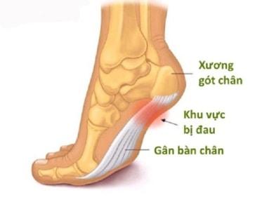đau gót bàn chân