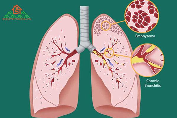 COPD là gì