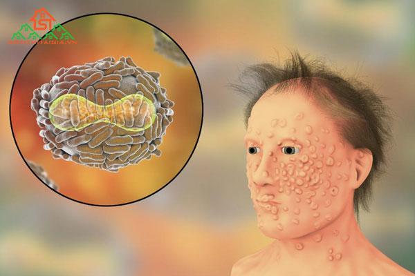 Bệnh đậu mùa