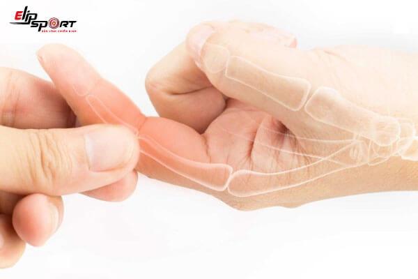 đau nhức các đốt ngón tay