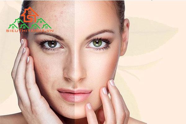 cách chăm sóc da mặt bị sạm đen
