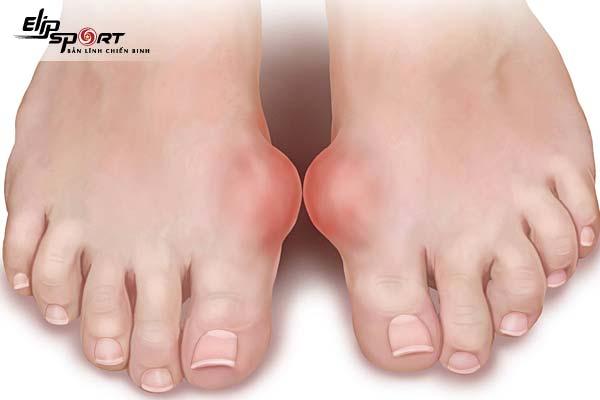 bị Gout nên làm gì