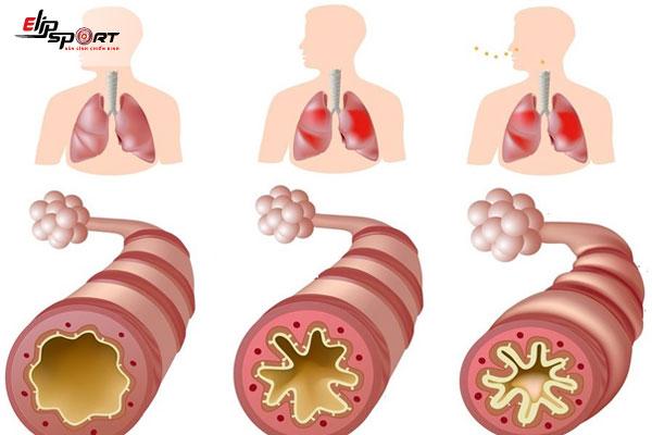 bệnh hen phế quản cách điều trị
