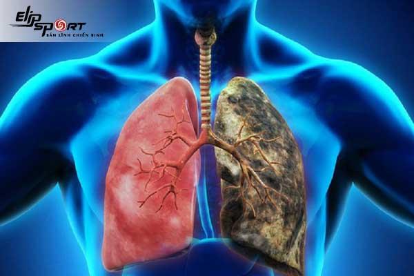 nguyên nhân bị lao phổi