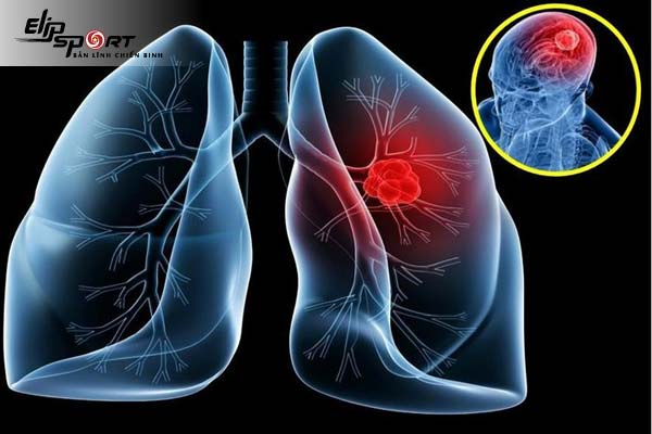 triệu chứng u phổi