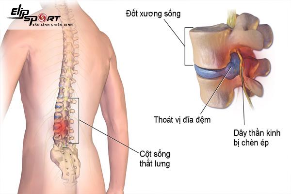 Tập bụng bị đau lưng