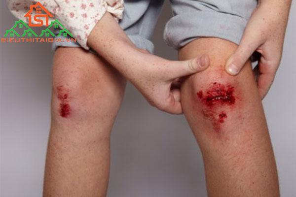 dấu hiệu vết thương bị nhiễm trùng