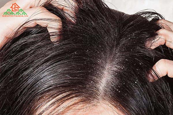 cách làm tóc khô nhanh mà không cần sấy
