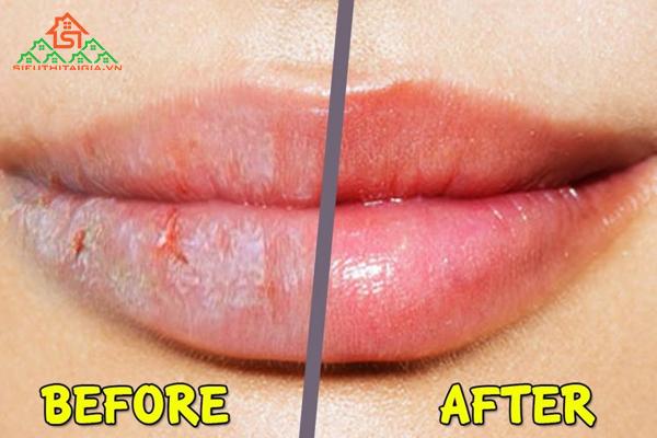 vaseline có trị thâm môi không