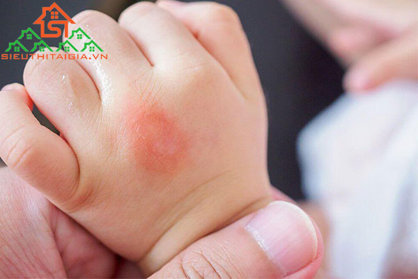 trẻ sơ sinh bị kiến ba khoang đốt
