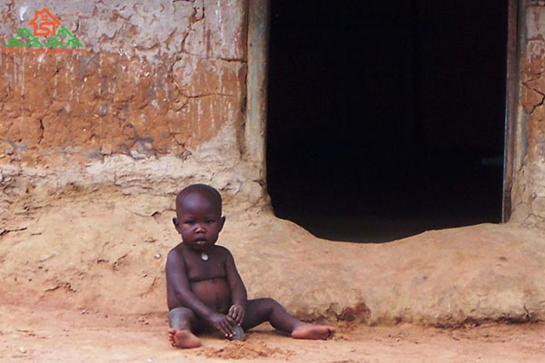 bệnh Kwashiorkor