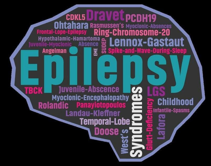 epilepsy-la-gi